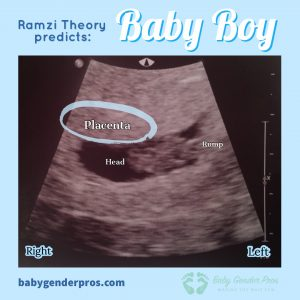 Ramzi Theory Example Boy Image 3