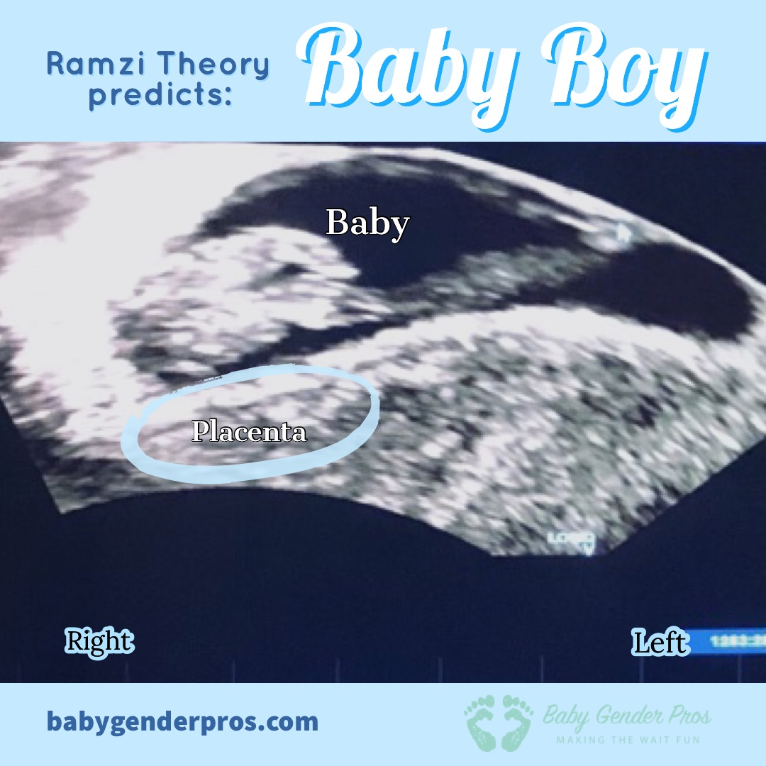 Ramzi theory predicts your baby sex - BabyGenderPro