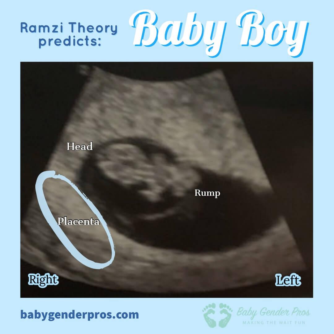 ramzi theory 9 week ultrasound